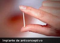 El implante en el brazo, un cómodo método anticonceptivo