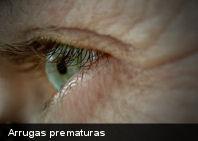 ¿Arrugas prematuras? Causas y Soluciones