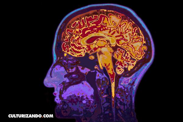La Nota Curiosa: Tu edad está escrita en tu cerebro