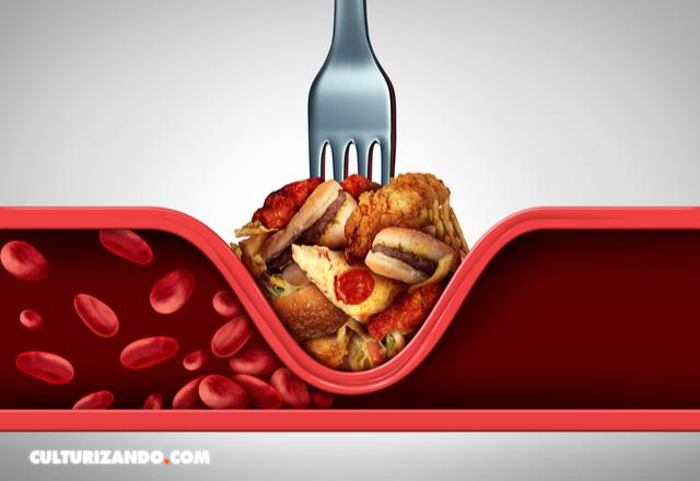 Qué es el colesterol - como bajar el colesterol