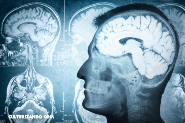 La Nota Curiosa: ¿A qué edad deja de crecer nuestro cerebro?