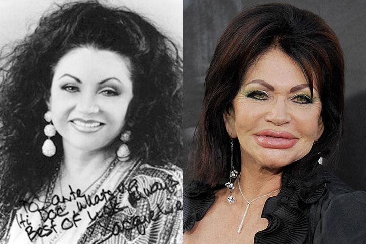 8 famosos antes y después de las cirugías