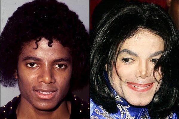 4 famosos antes y después de las cirugías