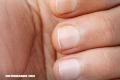 ¿Tienes algo de esto en tus uñas? Puedes estar enfermo