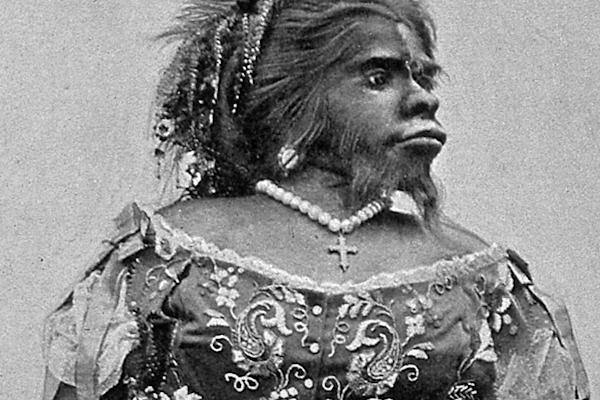 La realidad tras una terrible vida: Julia Pastrana, la mujer simio