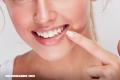 5 remedios caseros para blanquear los dientes
