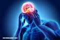 El estrés reduce el tamaño de tu cerebro… Mira cómo evitarlo