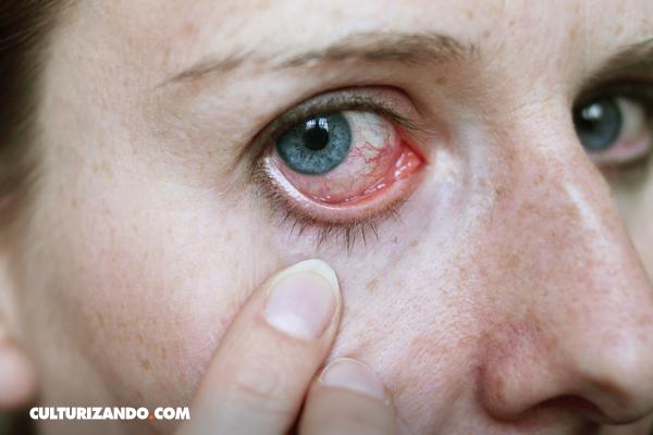 ¿El rojo de nuestros ojos es por el cloro de la piscina? ¡No!