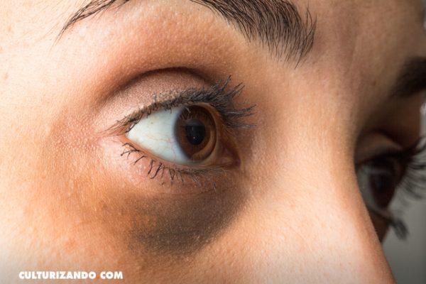 10 alternativas naturales para eliminar las ojeras